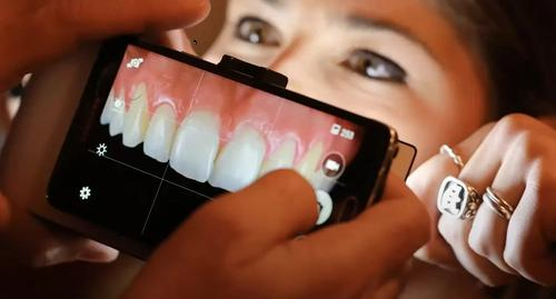 Best phone for dental photography